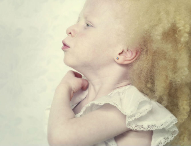 albinos 1