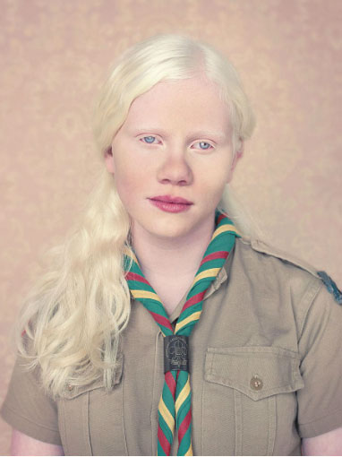 albinos 3