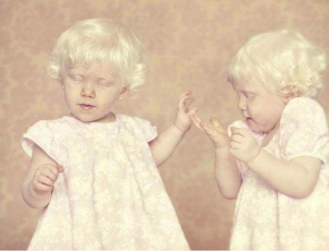 albinos 5