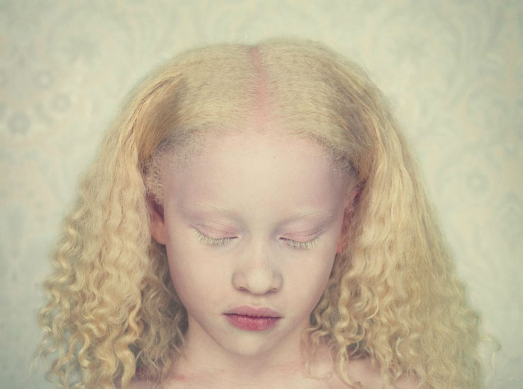 albinos 8