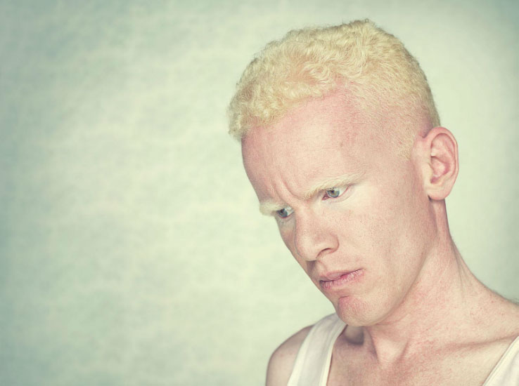 albinos 9